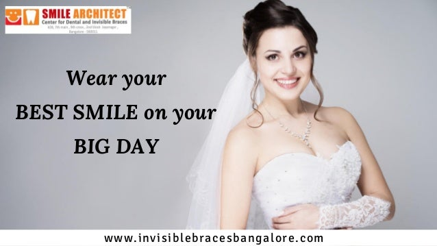 Wear your BEST SMILE on your BIG DAY www.invisiblebracesbangalore.com