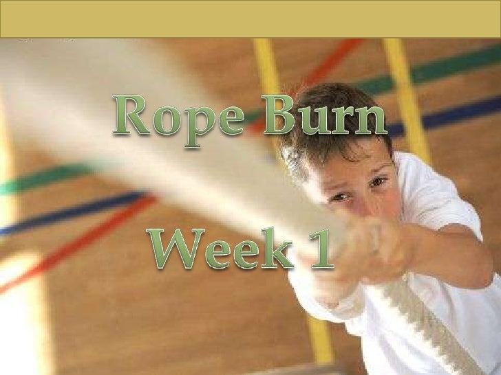 Rope Burn<br />Week 1 <br />