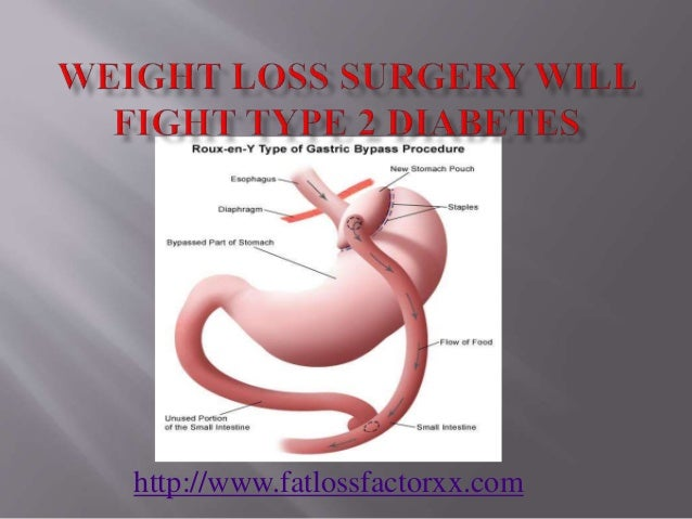 Fast weight loss unhealthy photo 4