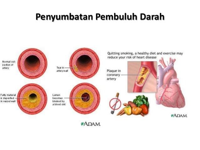 Obesitas Sentral Sangat Beresiko oleh dr. Yushila Meyrina, M.Si, Sp.GK