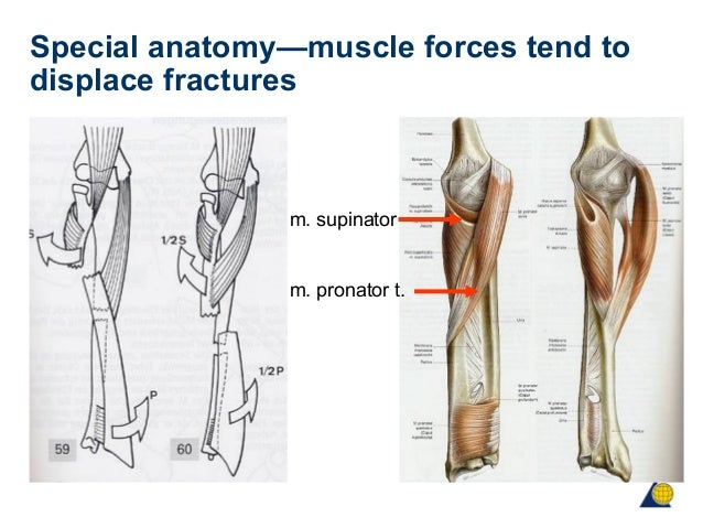 Fractures Arm Muscles Diagram - DIY Enthusiasts Wiring Diagrams •
