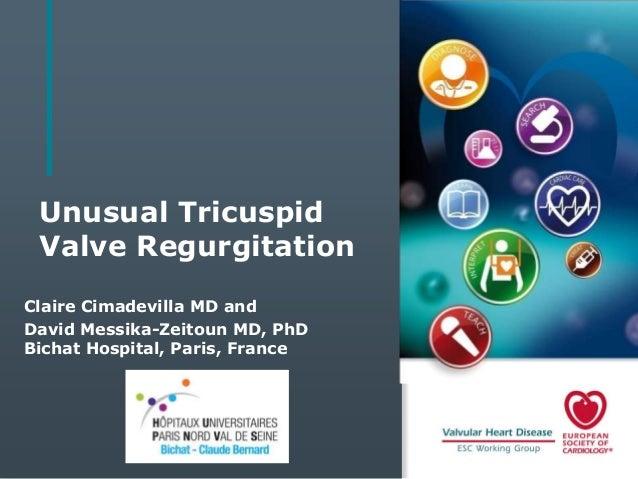 Unusual Tricuspid Valve Regurgitation Claire Cimadevilla MD and David Messika-Zeitoun MD, PhD Bichat Hospital, Paris, Fran...