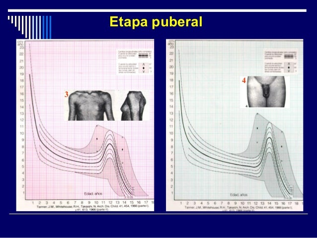 Clasificación Talla baja idiopática Talla baja patológica