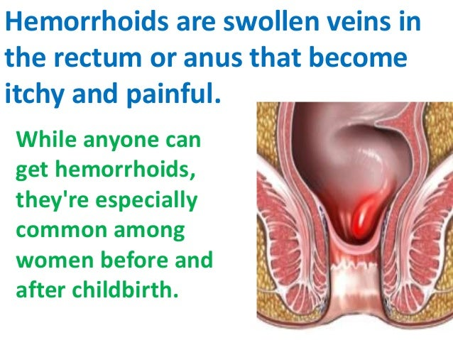 Symptoms itching anus
