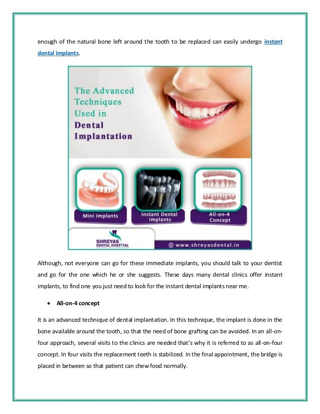 3 Advanced Techniques Used in Dental Implantation