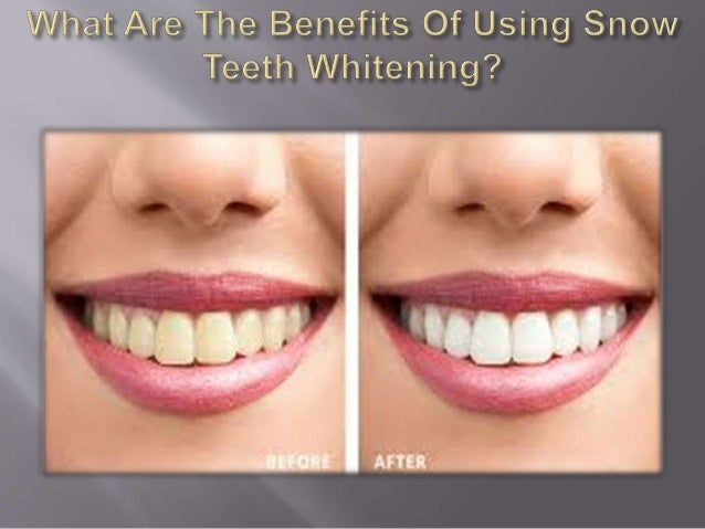 What Are The Benefits Of Using Snow Teeth Whitening