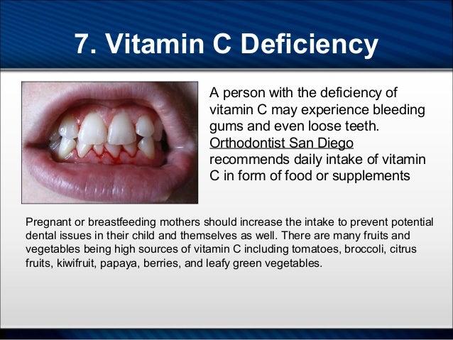 Oral intake 7 - 3 6