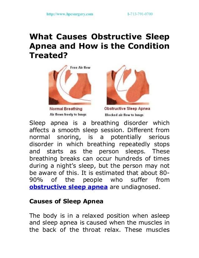 http://www.hpcsurgery.com 1-713-791-0700 What Causes Obstructive Sleep Apnea and How is the Condition Treated? Sleep apnea...