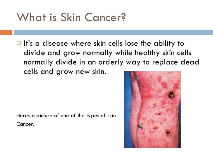 What Causes Skin Cancer