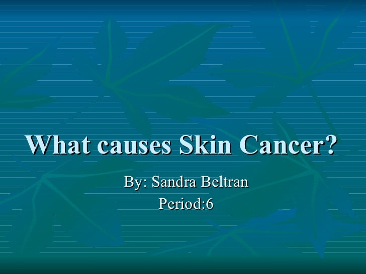 What causes Skin Cancer?  By: Sandra Beltran Period:6