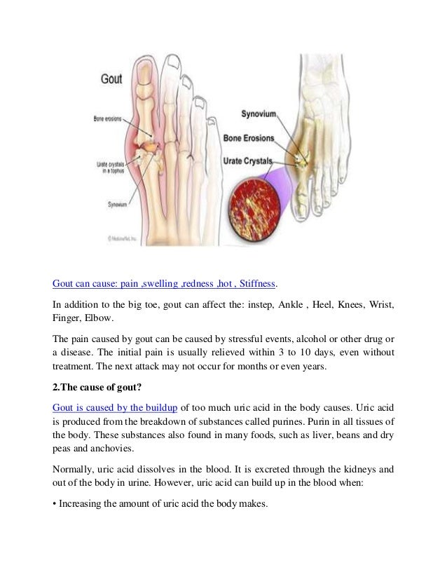 treat gout in thumb best over the counter relief for gout acute gout attack wiki