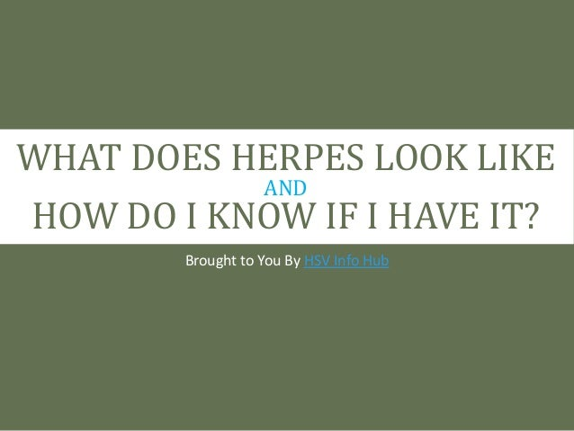 What Does Herpes Look Like And How Do I Know If I Have It