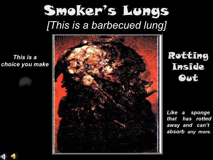 smoker�s lungs this is a
