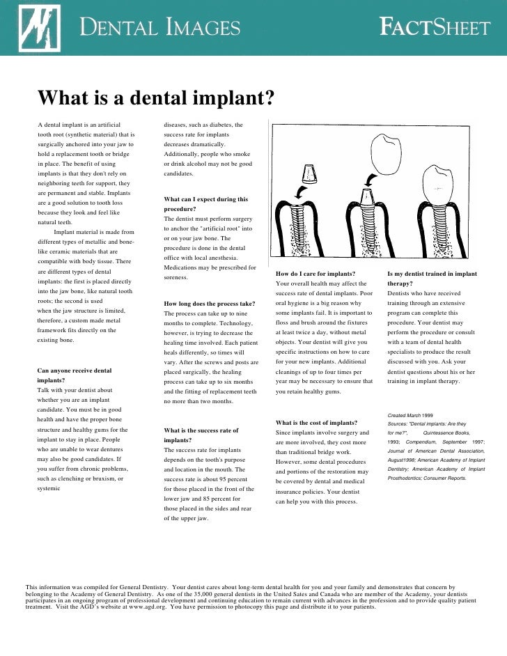 What is a dental implant?     A dental implant is an artificial              diseases, such as diabetes, the     tooth roo...