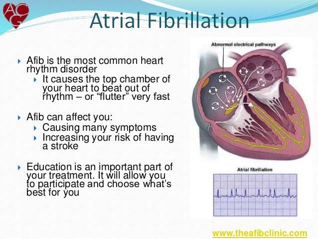 what is atrial fibrillation (afib)?, Sphenoid