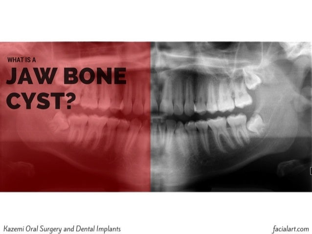 What is a Jaw Bone Cyst?