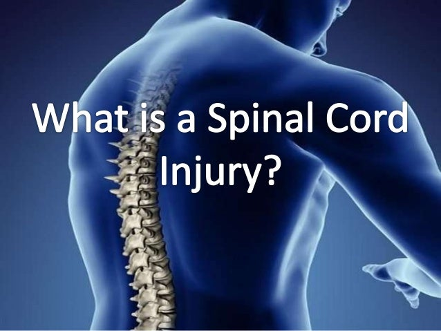 Spinal Cord Injury OverviewA Spinal Cord Injury (SCI) is damage or trauma to thespinal cord that results in a loss or impa...