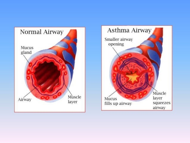 what is asthma and how is it Learning about asthma symptoms and triggers can help inflammation of the airways is an important component of asthma inflammation can make your airways more sensitive and more narrow than usual, making it harder to breathe the airways in the lungs may react to various triggers and become more inflamed.