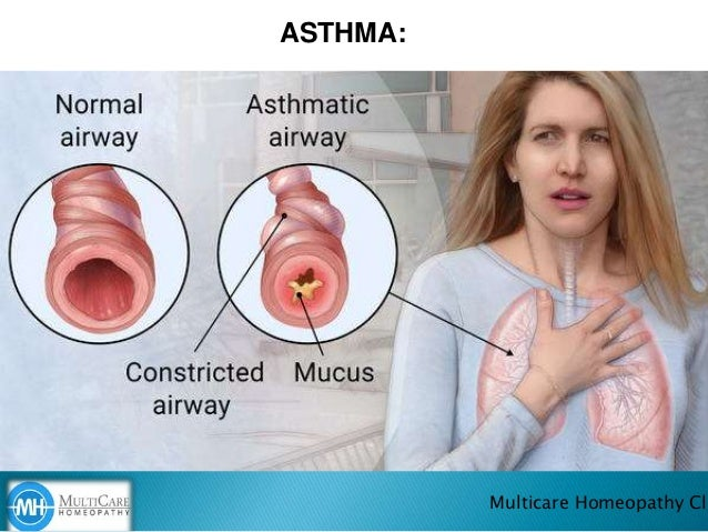 ASTHMA: Multicare Homeopathy Cli