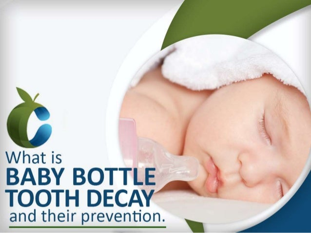 What is Baby Bottle Tooth Decay and their prevention.