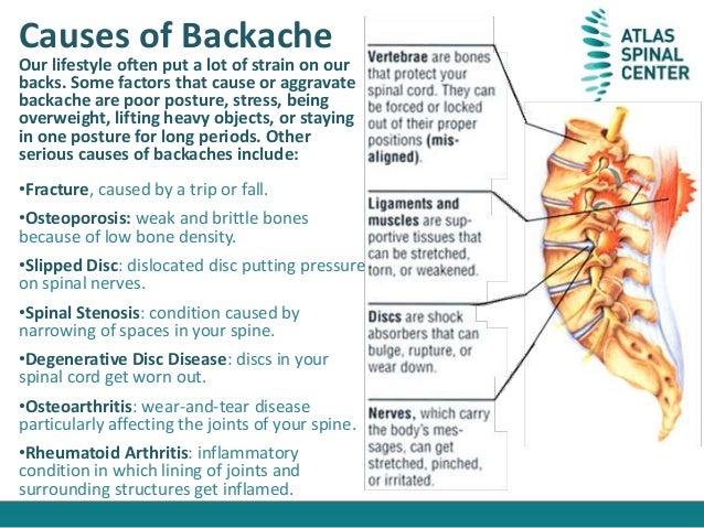 what is backache