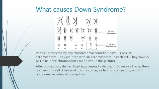 What is down syndrome 5 what causes down syndrome ccuart Image collections