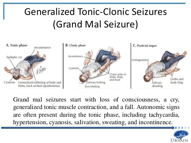 clonazepam tonic seizures