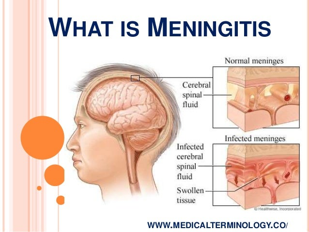 Image result for meningitis images