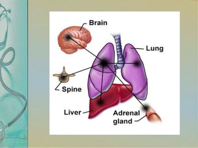 How they spread? • Lung cancer spreads if the primary tissue breaks. • This tissue then enters the bloodstream and the lym...