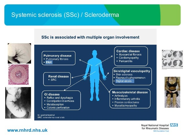 What is scleroderma? What is Raynaud's?