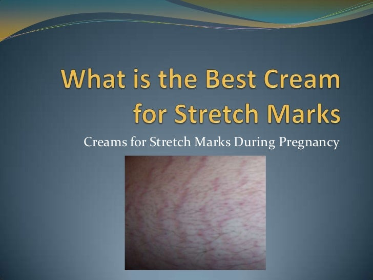 stretch mark cream during pregnancy reviews