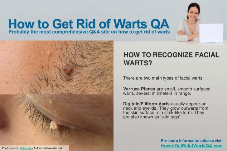 Get Rid Warts Neck Naturally