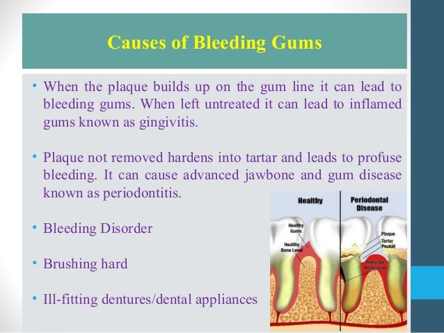 What is the cause behind bleeding gums