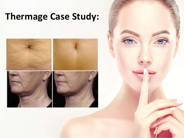 What Is Thermage?
