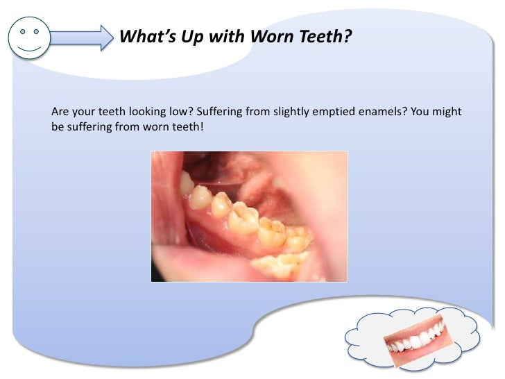 What's Up with Worn Teeth?Are your teeth looking low? Suffering from slightly emptied enamels? You mightbe suffering from ...