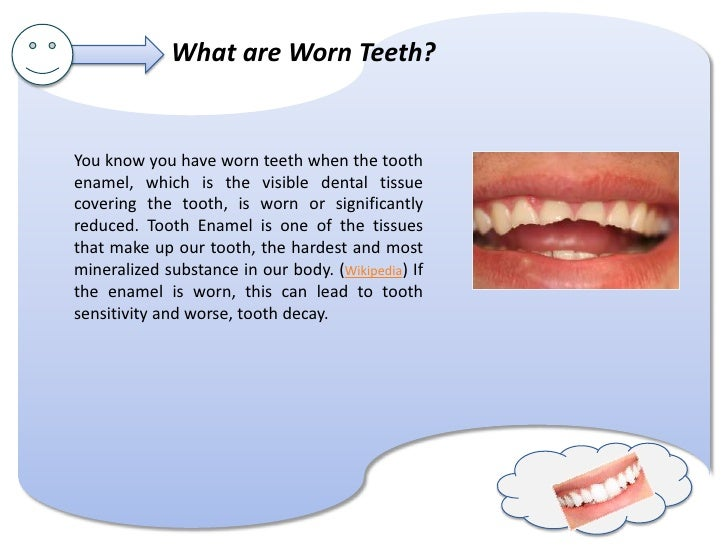 What's up with worn teeth? Slide 2