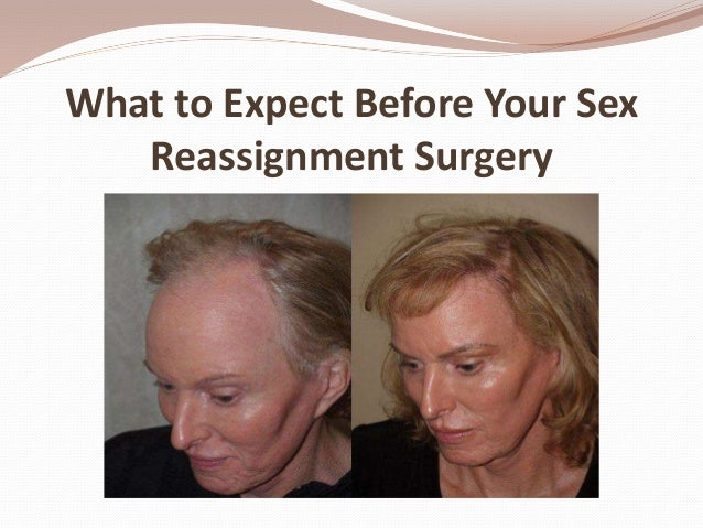 Sexual reassignment surgery before and after Nude Photos 94