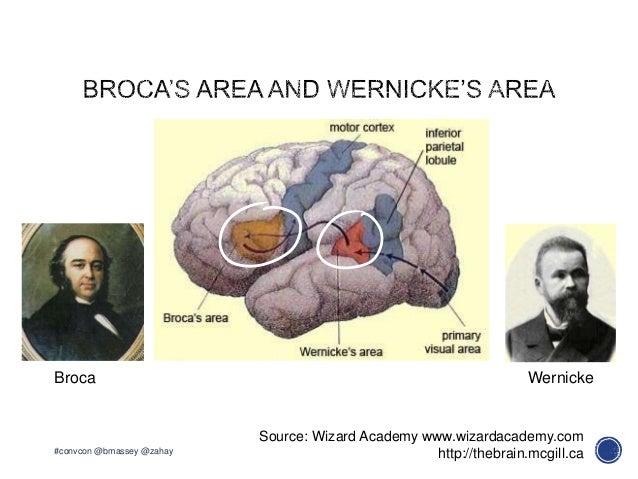 Source: Wizard Academy www.wizardacademy.comWernickeBrocahttp://thebrain.mcgill.ca#convcon @bmassey @zahay