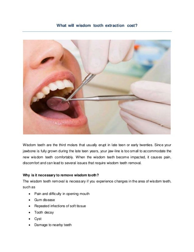 What Will Wisdom Tooth Extraction Cost