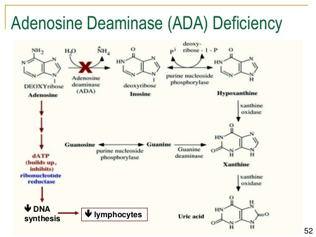 an overview of the adenosine deaminase deficiency Malacards based summary: adenosine deaminase 2 deficiency, also known as ada2 deficiency, is related to sneddon syndrome and polyarteritis nodosa 25 adenosine deaminase 2 (ada2) deficiency is a disorder characterized by abnormal inflammation of various tissues.