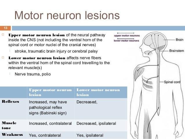 Anterior horn cell lower motor neuron for Lower motor neuron diseases