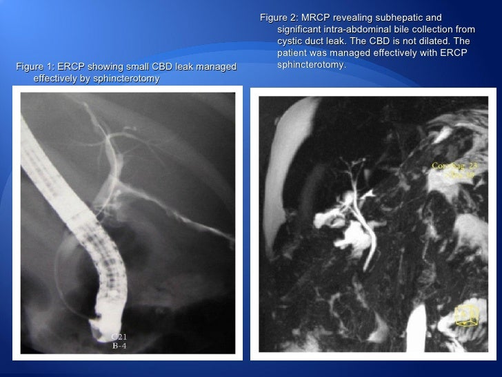  More often a biliary stricture develops (with dilated proximal ducts) which will require a hepaticojejunostomy. Placemen...