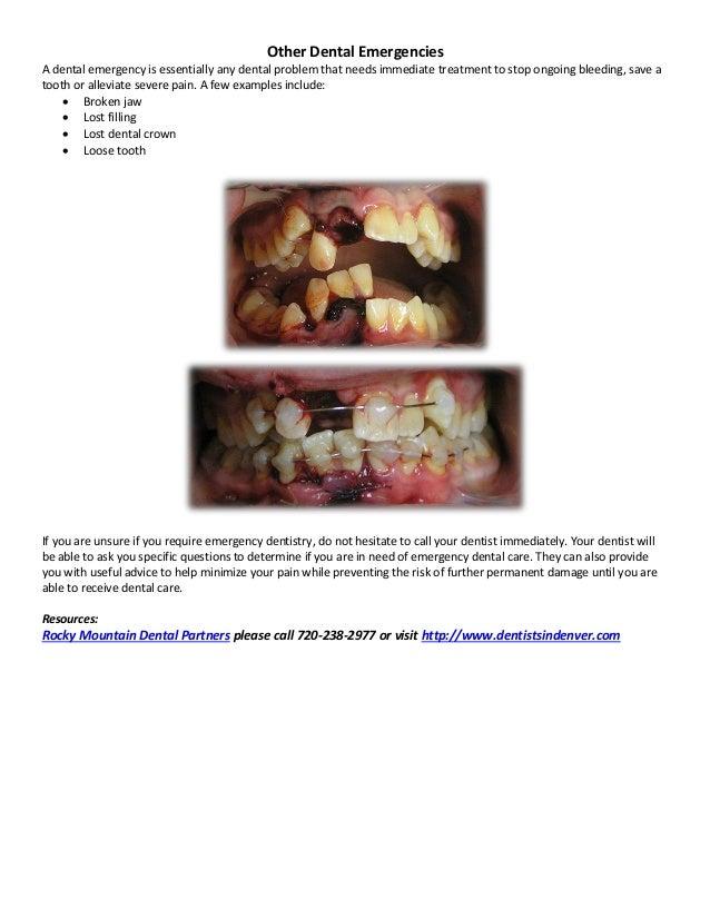 When To Seek Emergency Dentistry