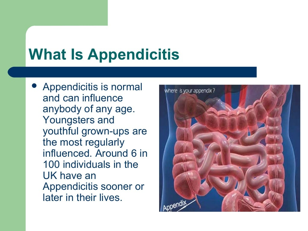 Where Is Your Appendix