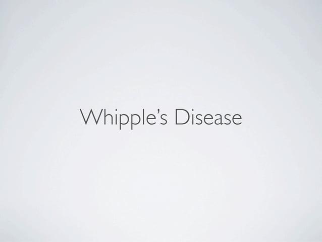 Whipple's Disease