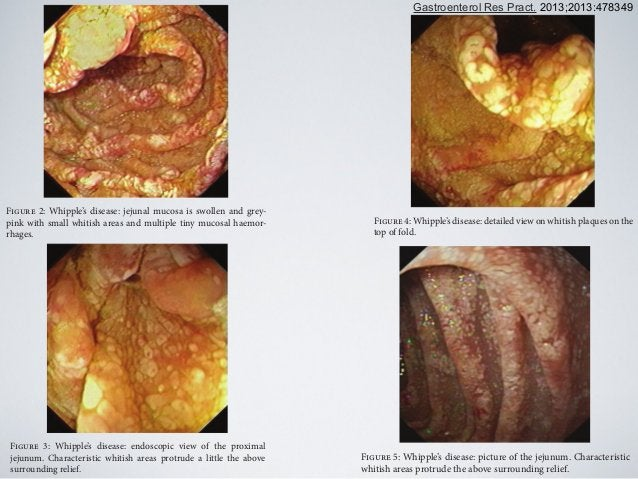 Figure 2: Whipple's disease: jejunal mucosa is swollen and grey- pink with small whitish areas and multiple tiny mucosal h...