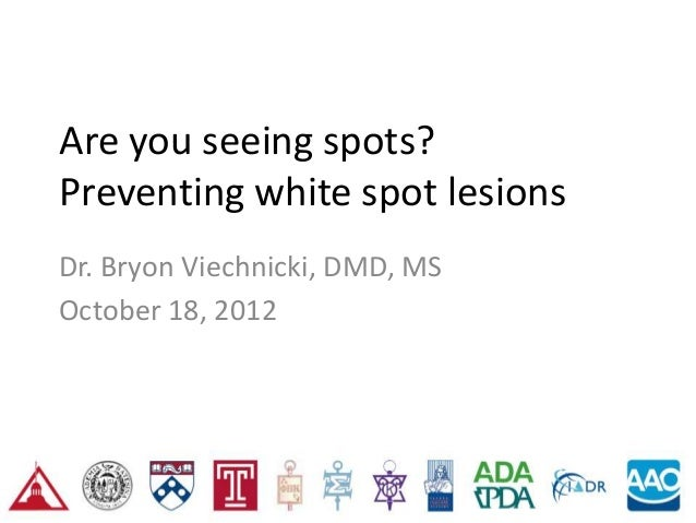Are you seeing spots?Preventing white spot lesionsDr. Bryon Viechnicki, DMD, MSOctober 18, 2012