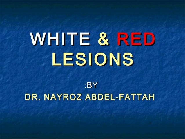 WHITE & RED LESIONS :BY DR. NAYROZ ABDEL-FATTAH
