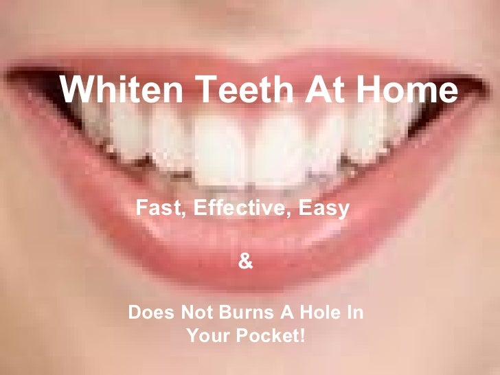 Fast, Effective, Easy  & Does Not Burns A Hole In Your Pocket! Whiten Teeth At Home