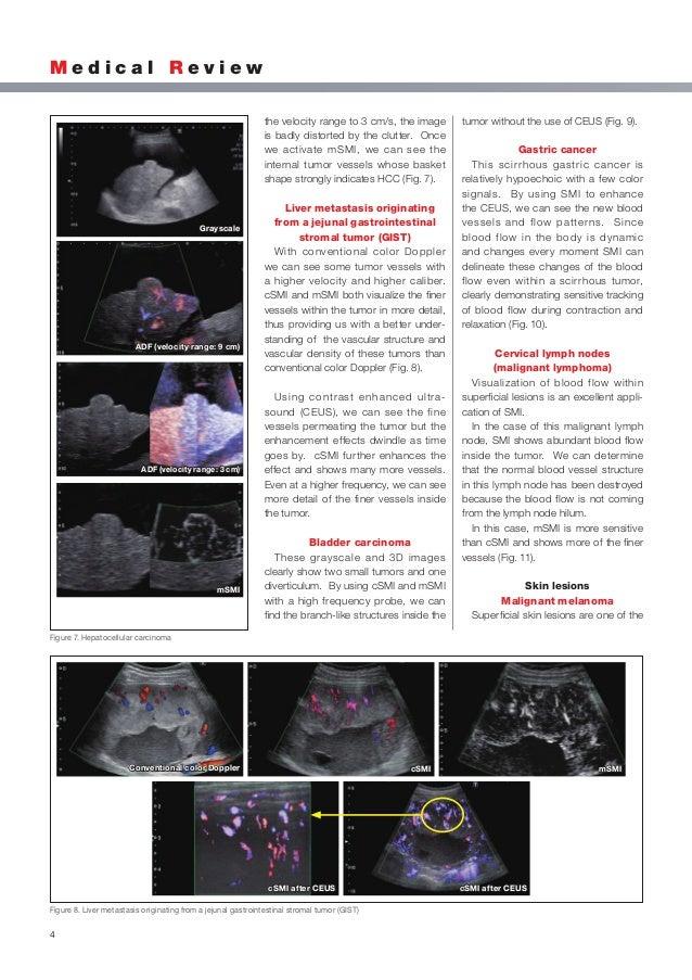 Home   Transactions on Medical Imaging  Link description